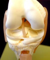 Артроскопические операции на мениске.